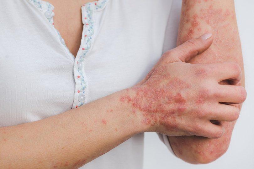 maladie de la peau